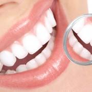 blanqueamiento-dental Farmacia Acacia en Leganés