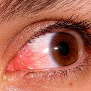 ojo_rojo Farmacia Acacia en Leganés